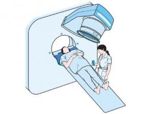 radioterapia efectos ecundarios